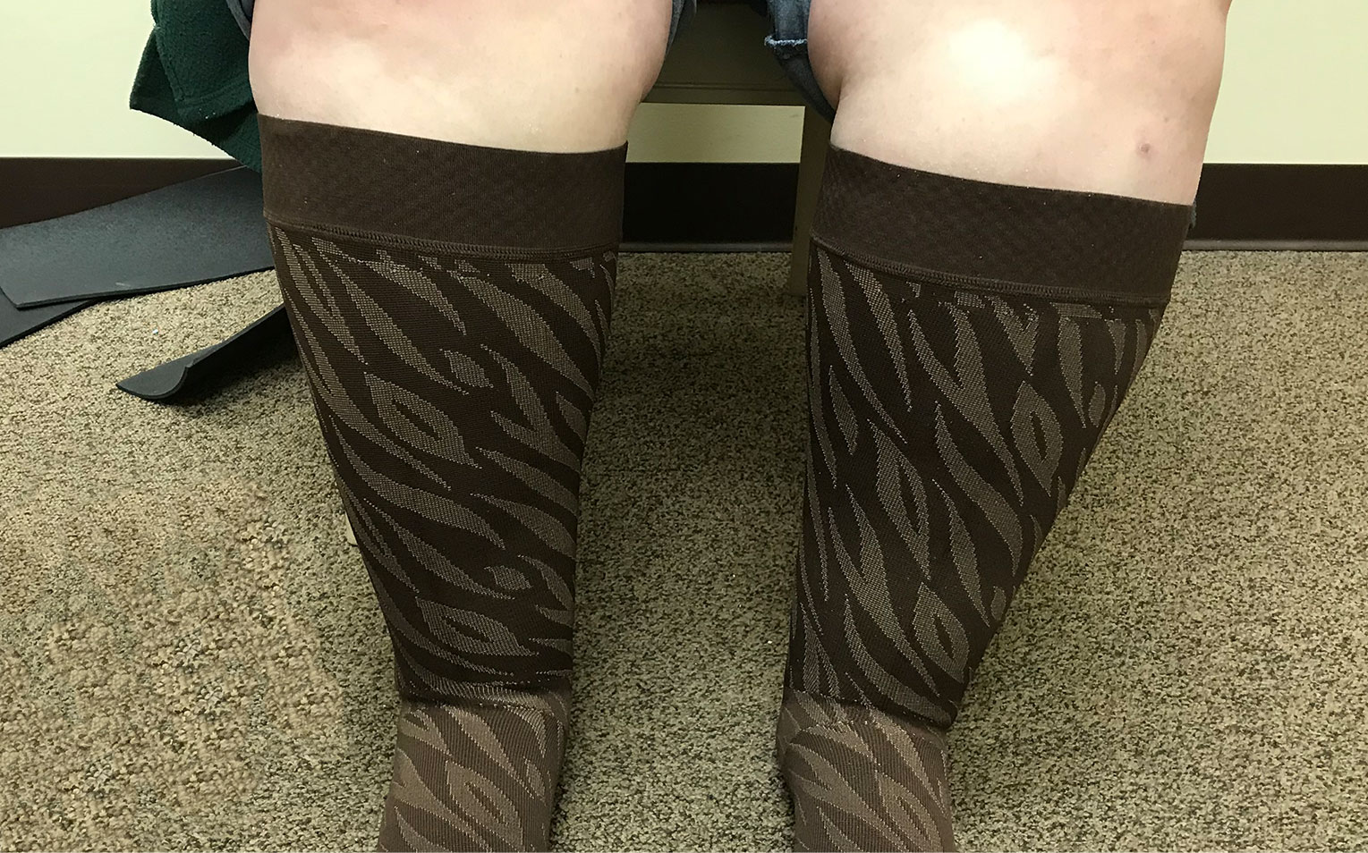 Custom knee highs compression